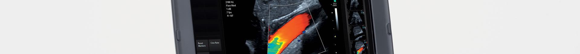 Siemans Halthineers - Advanced Ultrasound